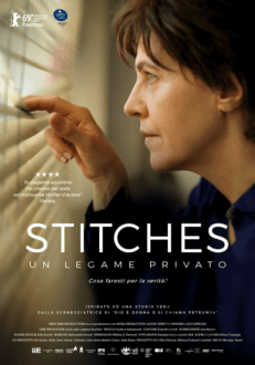 Stitches-in