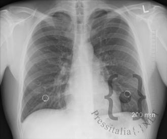 polmoni-in